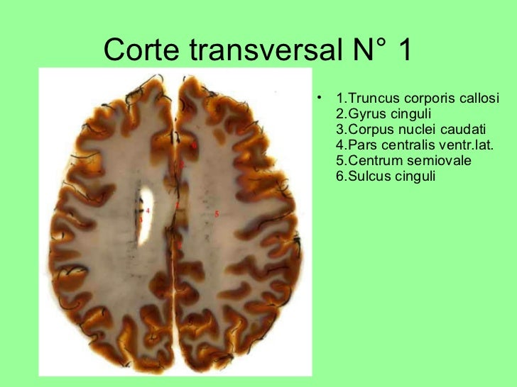 Corte transversal N° 1 <ul><li>1.Truncus corporis callosi 2.Gyrus cinguli 3.Corpus nuclei caudati 4.Pars centralis ventr.l...