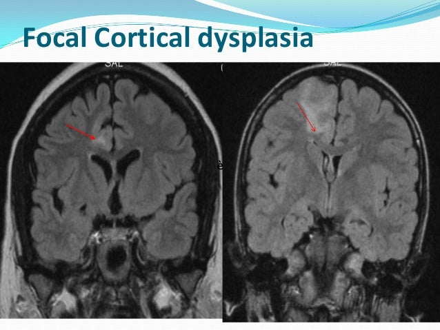 Cortical dysplasia and epilepsy