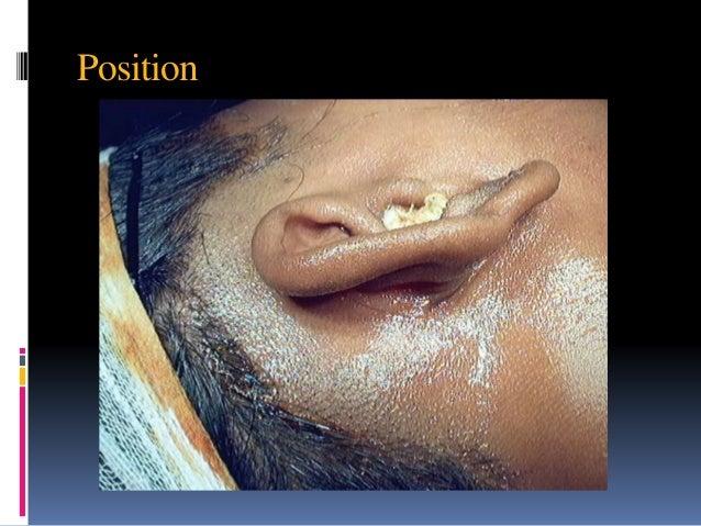 Cortical mastoidectomy