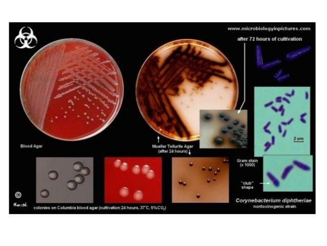 Corynebacterium diphteriae on Tinsdale agar: black colonies with brown halo
