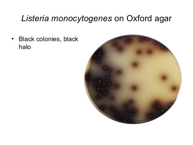 Listeria: main bacteriological diagnosis elements