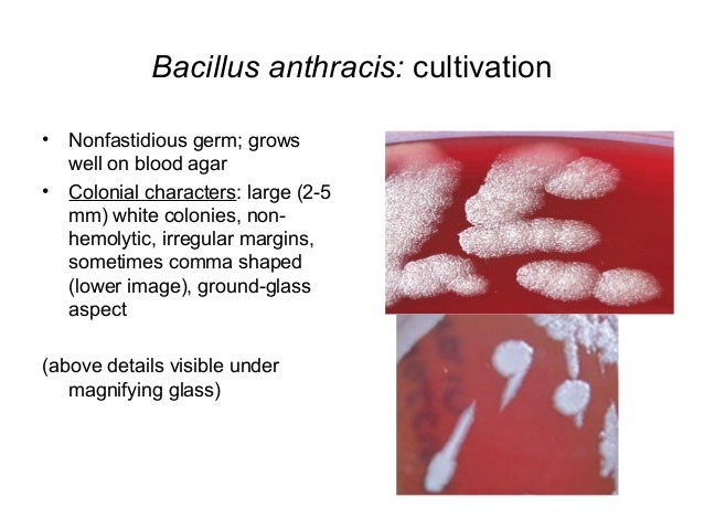 bacillus anthracis essay A system is described for the rapid and accurate identification of bacillus isolates  using a matrix of results from  bacillus cereus strains of serotypes 1, 3, 5 and 8  (which include strains isolated in connection  in essays in microbiology, pp.