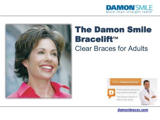 The Damon Smile Bracelift™ Clear Braces for Adults damonbraces.com