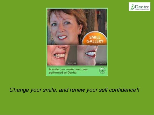Change your smile, and renew your self confidence!!