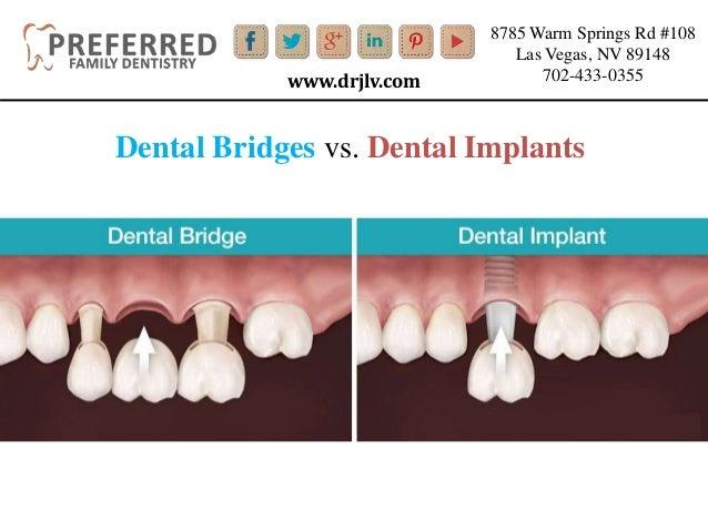 all on four dental implants pdf