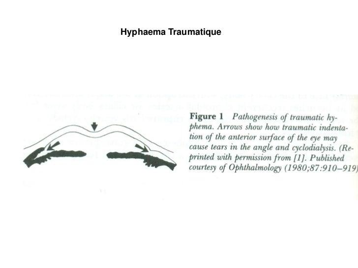 Hyphaema Traumatique