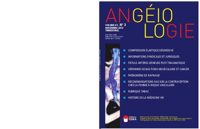 ANGÉIO LOGIE  VOLUME 65 - N° 3 NOVEMBRE 2013 TRIMESTRIEL  Angéiologie – Vol. 65 - n° 3 – Novembre 2013 – Trimestriel  ISSN...