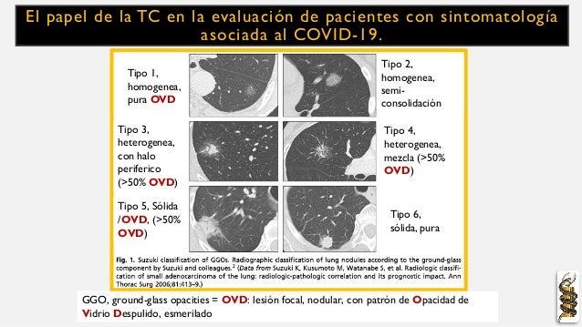 El papel de la TC en la evaluación de pacientes con sintomatología asociada al COVID-19. Tipo 1, homogenea, pura OVD GGO, ...
