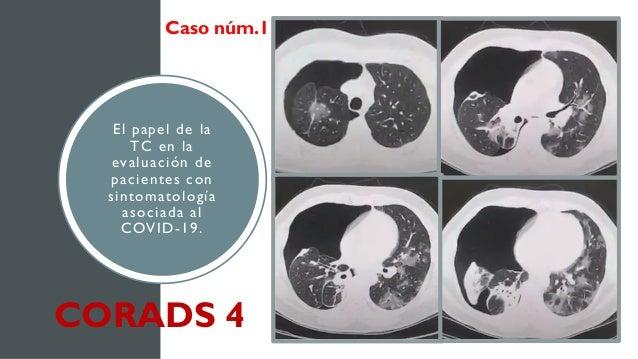 El papel de la TC en la evaluación de pacientes con sintomatología asociada al COVID-19. Caso núm.1 CORADS 4