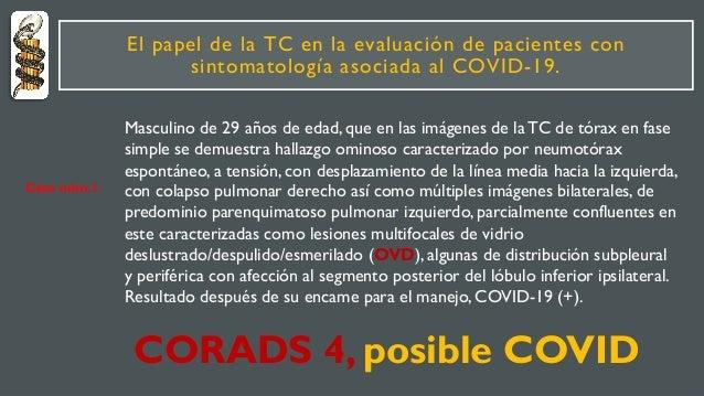 El papel de la TC en la evaluación de pacientes con sintomatología asociada al COVID-19. Masculino de 29 años de edad, que...