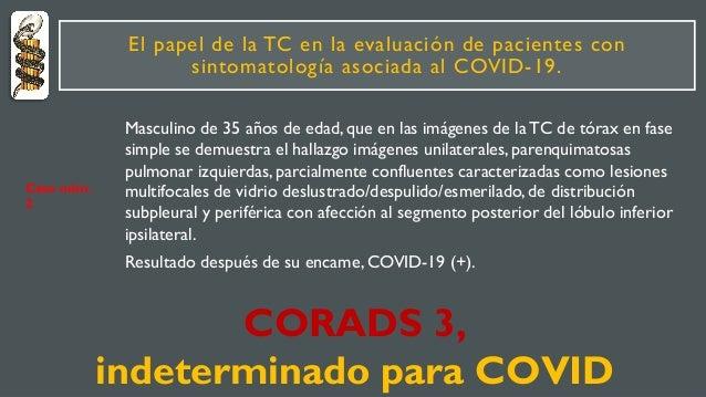 El papel de la TC en la evaluación de pacientes con sintomatología asociada al COVID-19. Masculino de 35 años de edad, que...