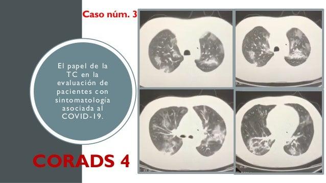 El papel de la TC en la evaluación de pacientes con sintomatología asociada al COVID-19. Caso núm. 3 CORADS 4