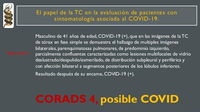 El papel de la TC en la evaluación de pacientes con sintomatología asociada al COVID-19. Masculino de 41 años de edad, COV...