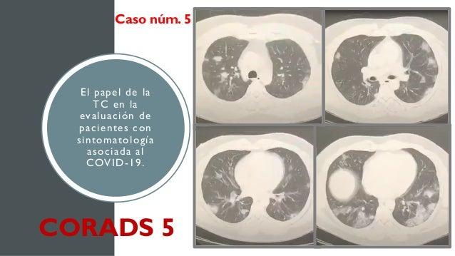 El papel de la TC en la evaluación de pacientes con sintomatología asociada al COVID-19. Caso núm. 5 CORADS 5