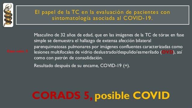 El papel de la TC en la evaluación de pacientes con sintomatología asociada al COVID-19. Masculino de 32 años de edad, que...