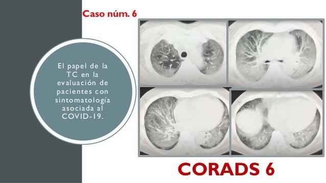 El papel de la TC en la evaluación de pacientes con sintomatología asociada al COVID-19. Caso núm. 6 CORADS 6