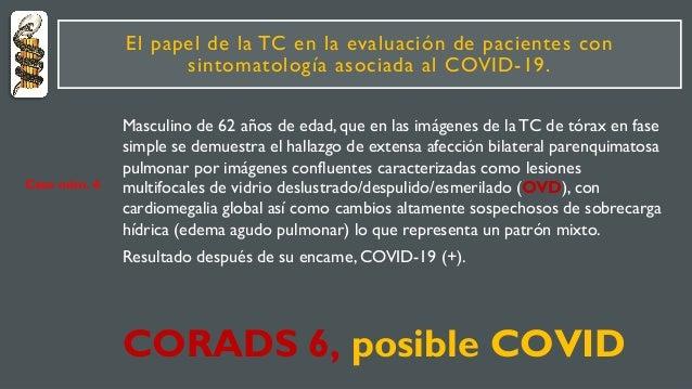 El papel de la TC en la evaluación de pacientes con sintomatología asociada al COVID-19. Masculino de 62 años de edad, que...