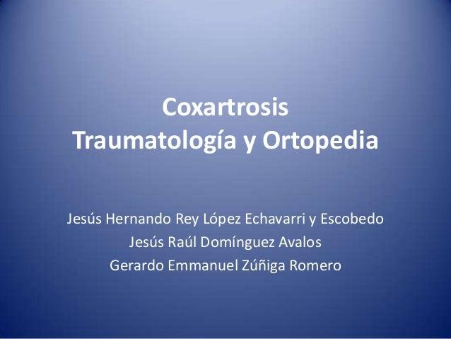 Coxartrosis Traumatología y Ortopedia Jesús Hernando Rey López Echavarri y Escobedo Jesús Raúl Domínguez Avalos Gerardo Em...