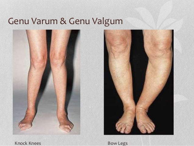 genu varum genu valgum knock knees bow legs
