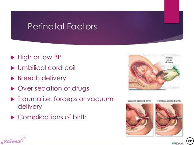 An overview of cerebral palsy = الشلل الدماغي Vacuum Delivery Complications