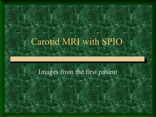 Carotid MRI with SPIO Images from the first patient