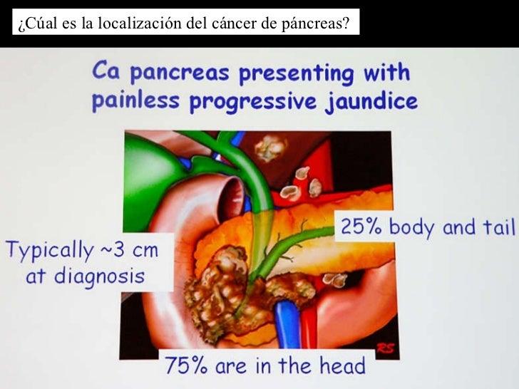 Ca pancreas y diabetes