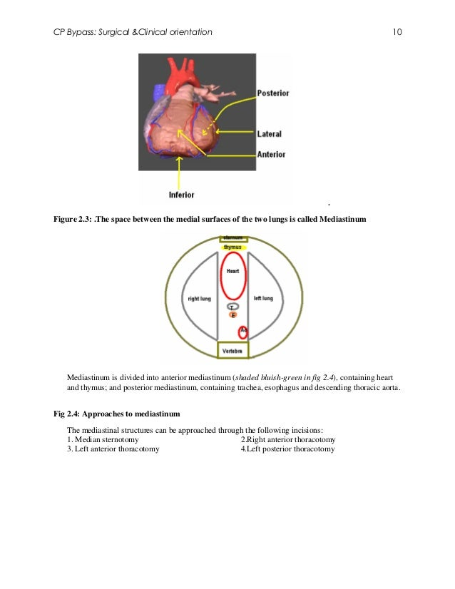 CP Bypass: Surgical &Clinical orientation                                                          10                     ...