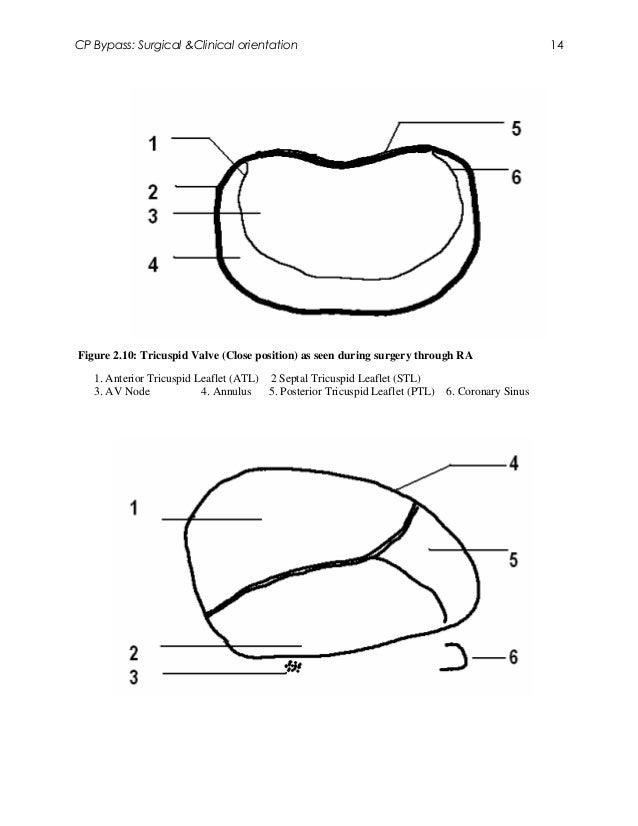 CP Bypass: Surgical &Clinical orientation                                                         14Figure 2.10: Tricuspid...
