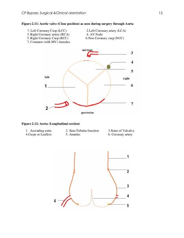 CP Bypass: Surgical &Clinical orientation                                          15Figure 2.11: Aortic valve (Close posi...