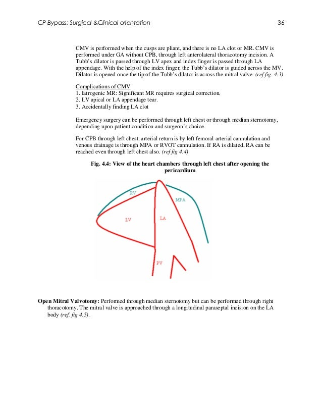 CP Bypass: Surgical &Clinical orientation                                                                  36             ...