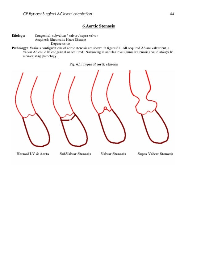 CP Bypass: Surgical &Clinical orientation                                                            44                   ...