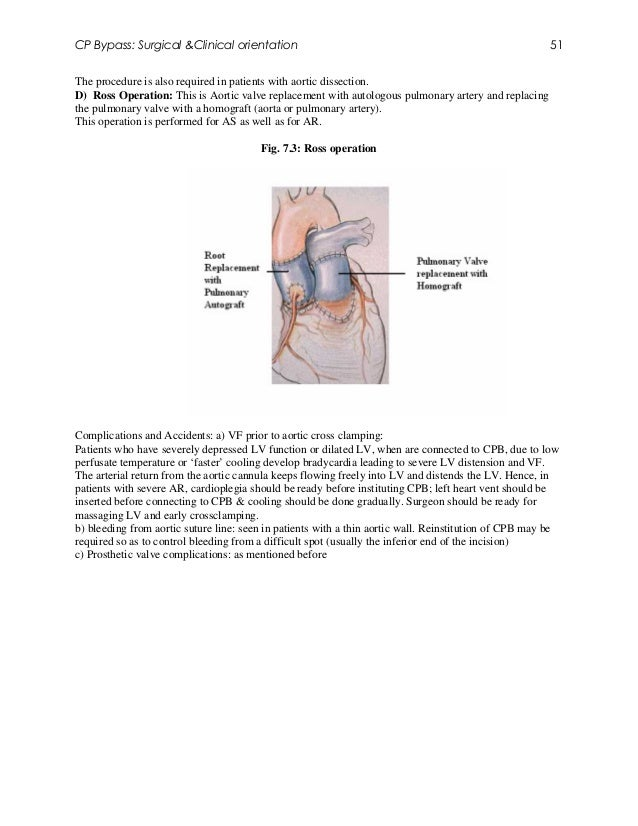 CP Bypass: Surgical &Clinical orientation                                                               51The procedure is...