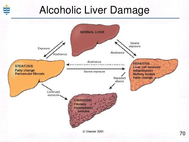 Pathology of hepatitis 41br liver biopsy viral hepatitis cbr ccuart Images