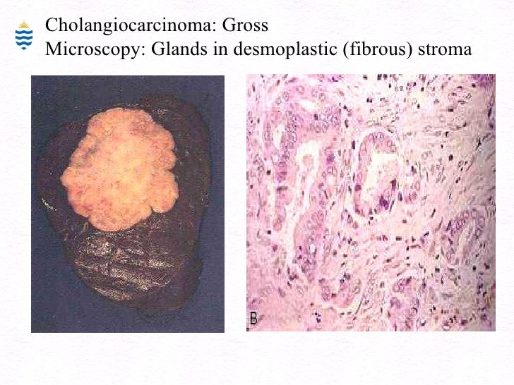 Cholangiocarcinoma gross
