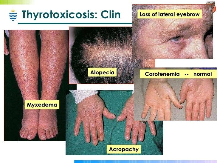 Pathology Of Thyroid Endocrine Disorders