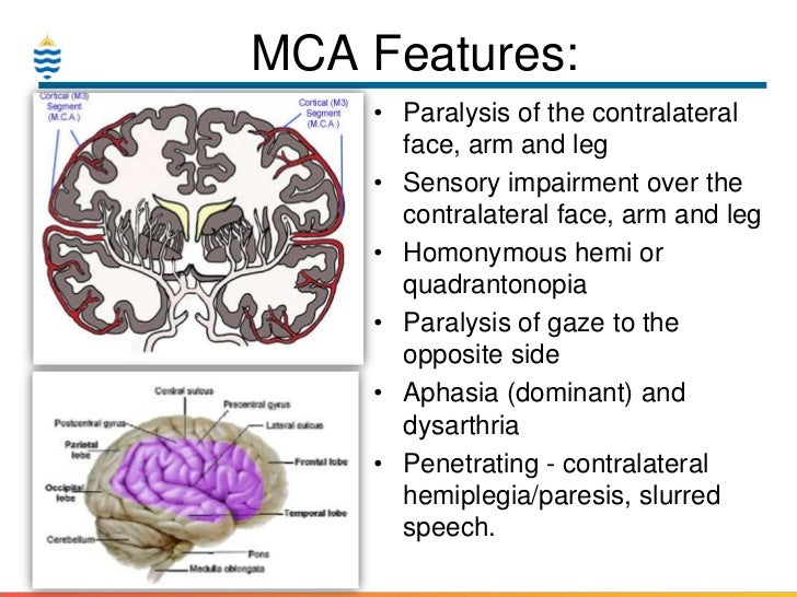 Pathology of Stroke & CVA