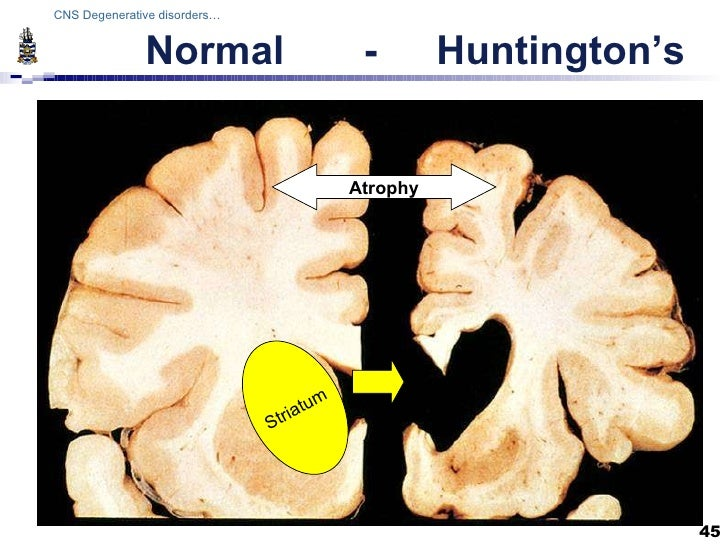 a study on the causes of huntingtons disease Huntington's disease (hd) is an autosomal dominant neurodegenerative disorder that affects approximately 5 – 10 individuals per 100,000 individuals typically suffer from progressive motor and cognitive impairments, loss of self and spatial awareness, depression, dementia, and increased anxiety over the course of 10 – 20 years before death.