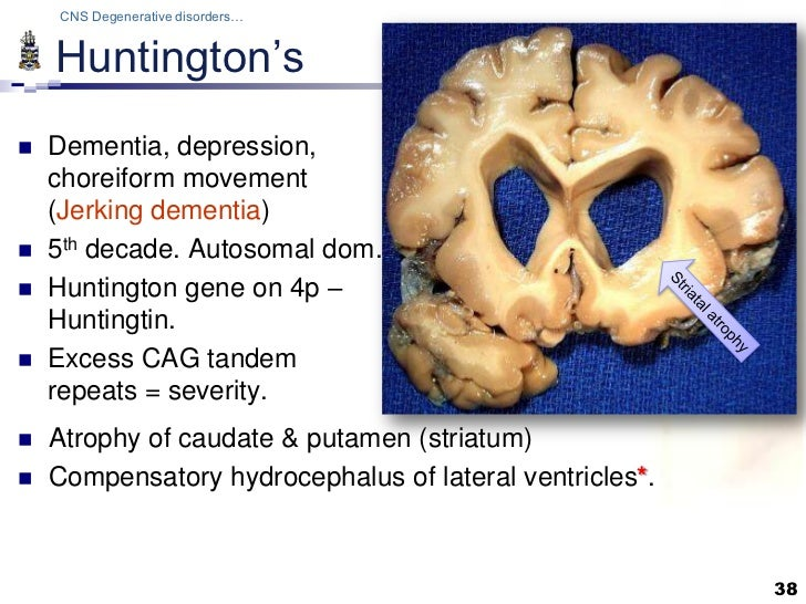 Pathology of CNS Degenerations Lecture
