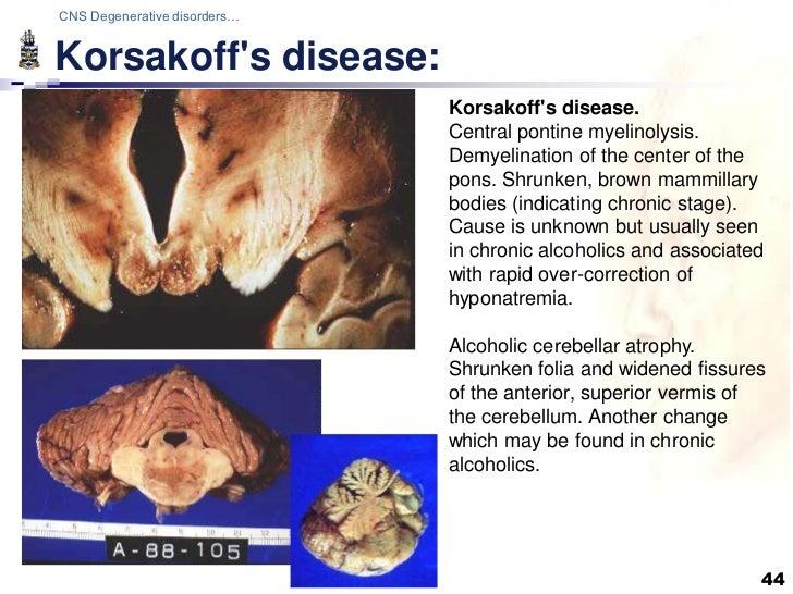 Σύνδρομο Wrnicke-Korsakoff