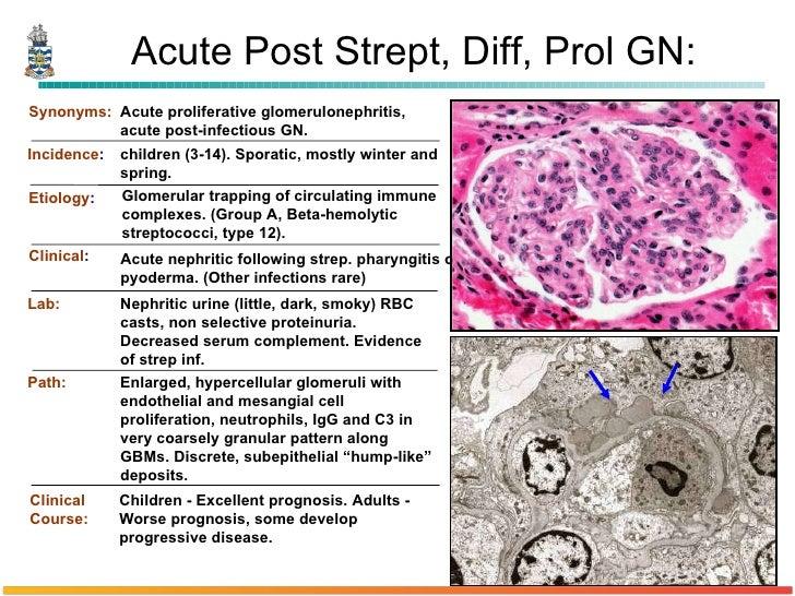 Pathology of Glomerulonephritis