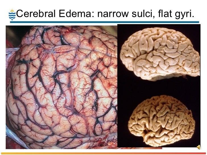 pathology of stroke