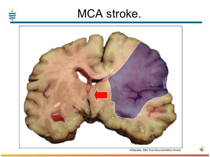Pathology of Stroke-CVA