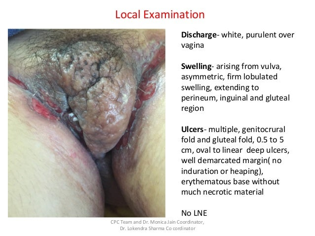 Swelling Of Vagina After Sex 27