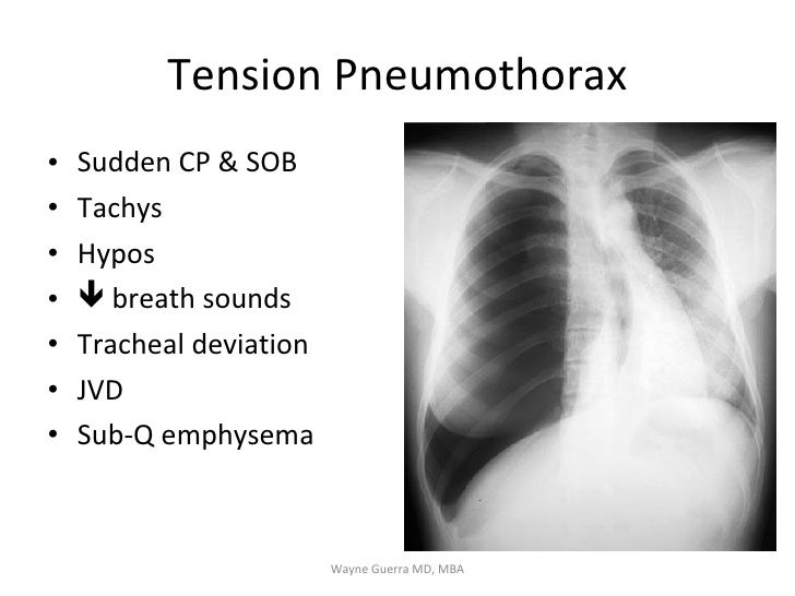 Chest Pain: EMS Review