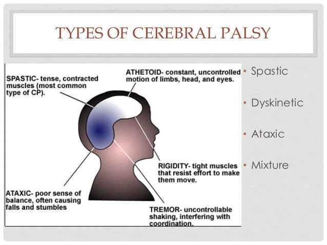 TYPES OF CEREBRAL PALSY • Spastic • Dyskinetic • Ataxic • Mixture