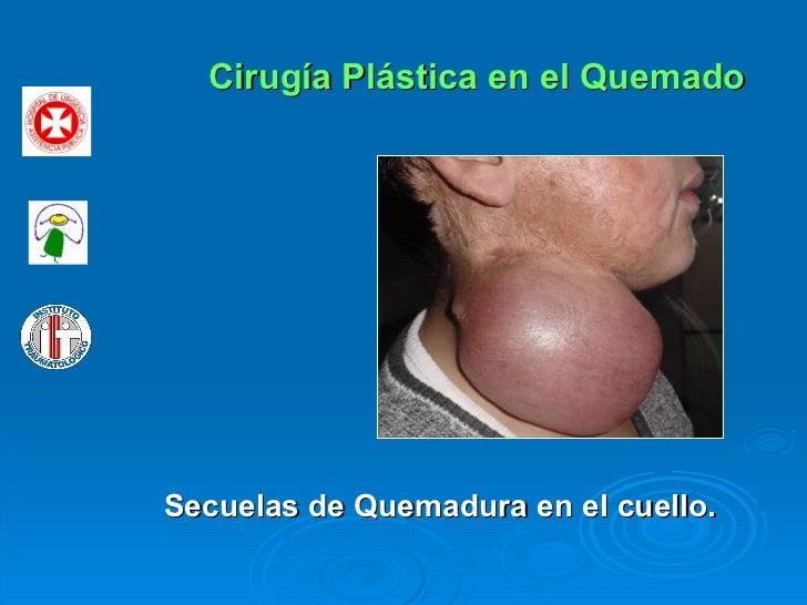 Cirugía Plástica en el Quemado Secuelas de Quemadura en el cuello.