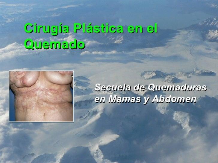 Cirugía Plástica en el Quemado Secuela de Quemaduras en Mamas y Abdomen