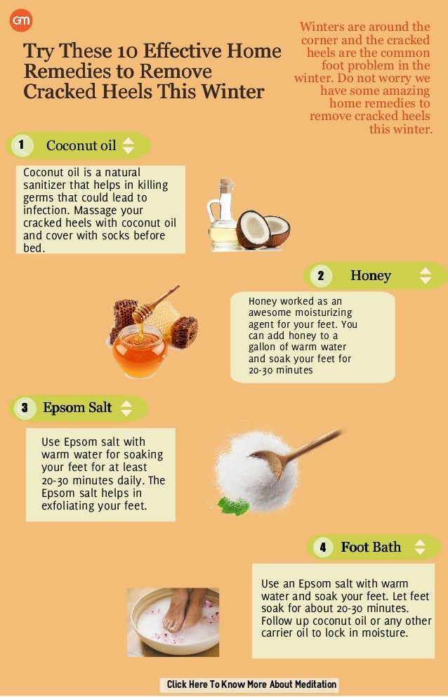 Home Remedies to Remove Cracked Heels
