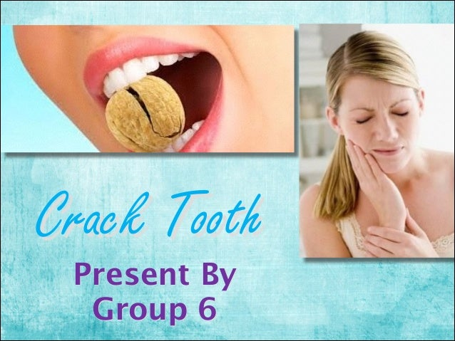 Crack Tooth Present By Group 6