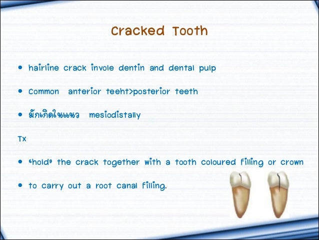 crack in tooth